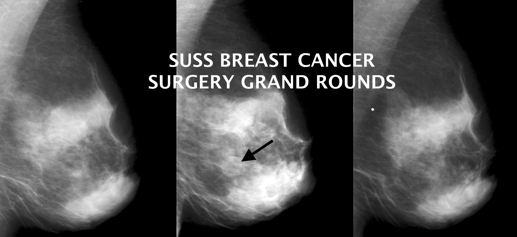 Breast Cancer Surgery Grand Rounds