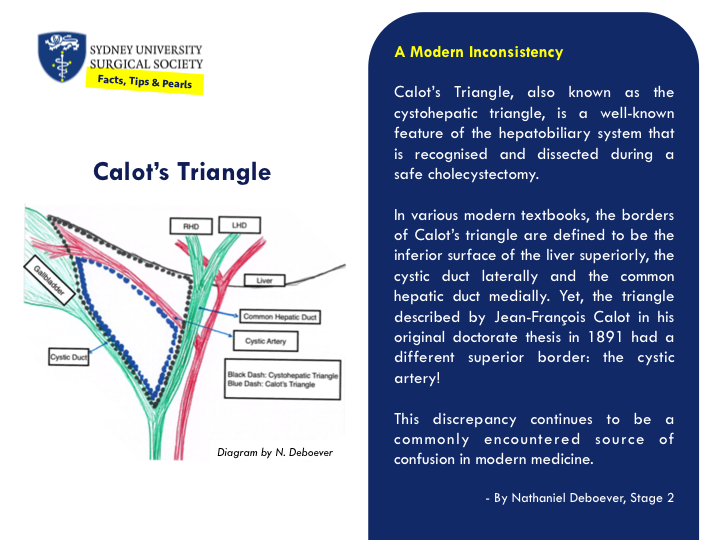 A description of the anatomical borders of Calot's Triangle.