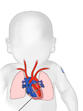 Simple silhouette of a baby with a heart, lungs, and major vessels drawn on top