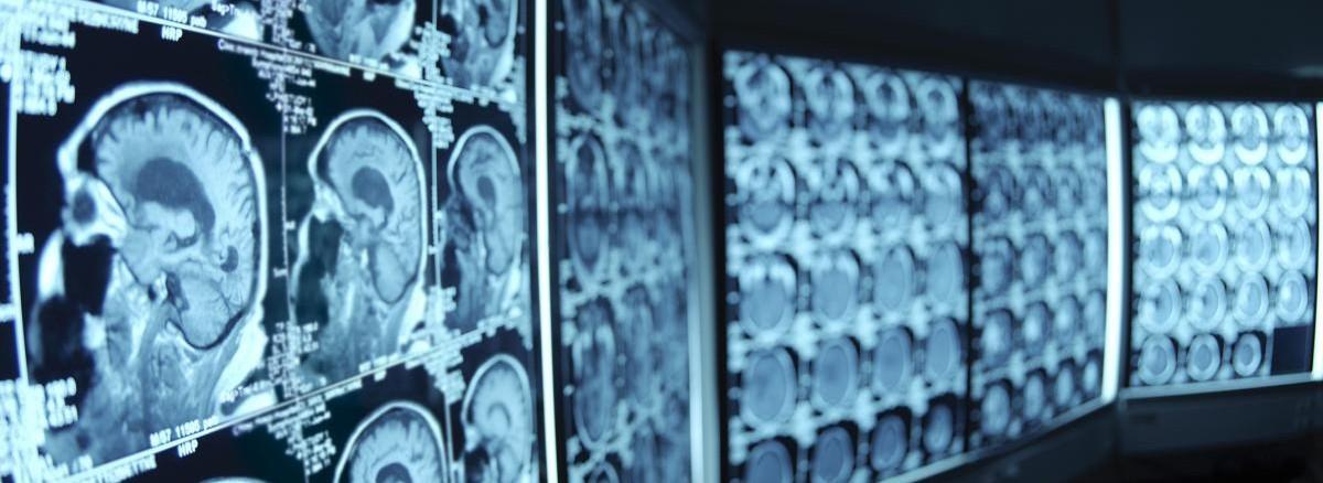 SUSS Neurosurgery Grand Rounds